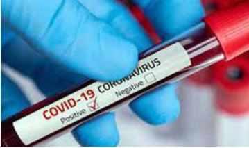 यूपी: कोविड के प्रारंभिक लक्षण पर मिलेगी नि:शुल्क दवा एवं चिकित्सीय सलाह